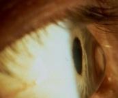 ectasia corneale per cheratocono