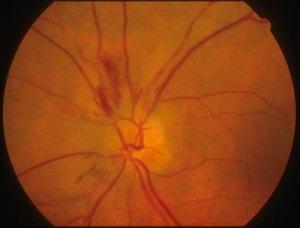 edema del disco ottico con emorragie peripapillari