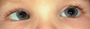 deviazione oculare per strabismo nei bambini